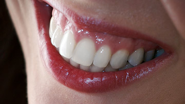 Closeup of smile with healthy gums