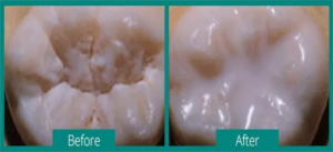 before and after photo of a tooth with and without a dental sealant
